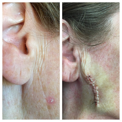 basal cell carcinoma, skin cancer, skin cancer prevention