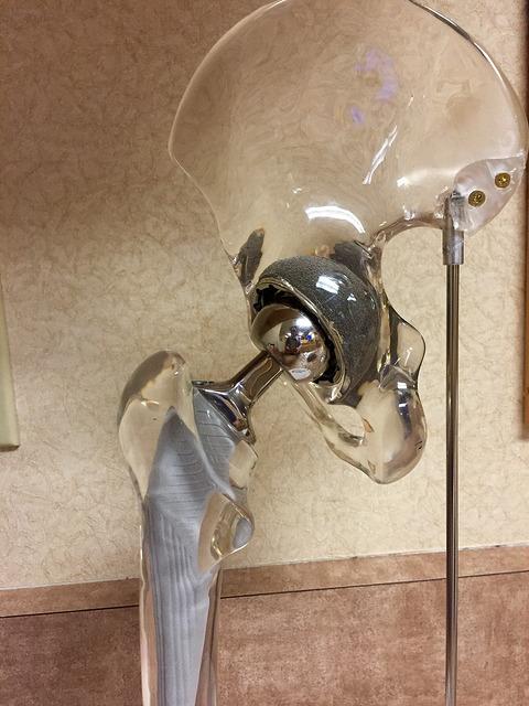 DePuy hip prosthesis, Summit stem